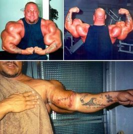 Side-Effects-of-Using-Steroids